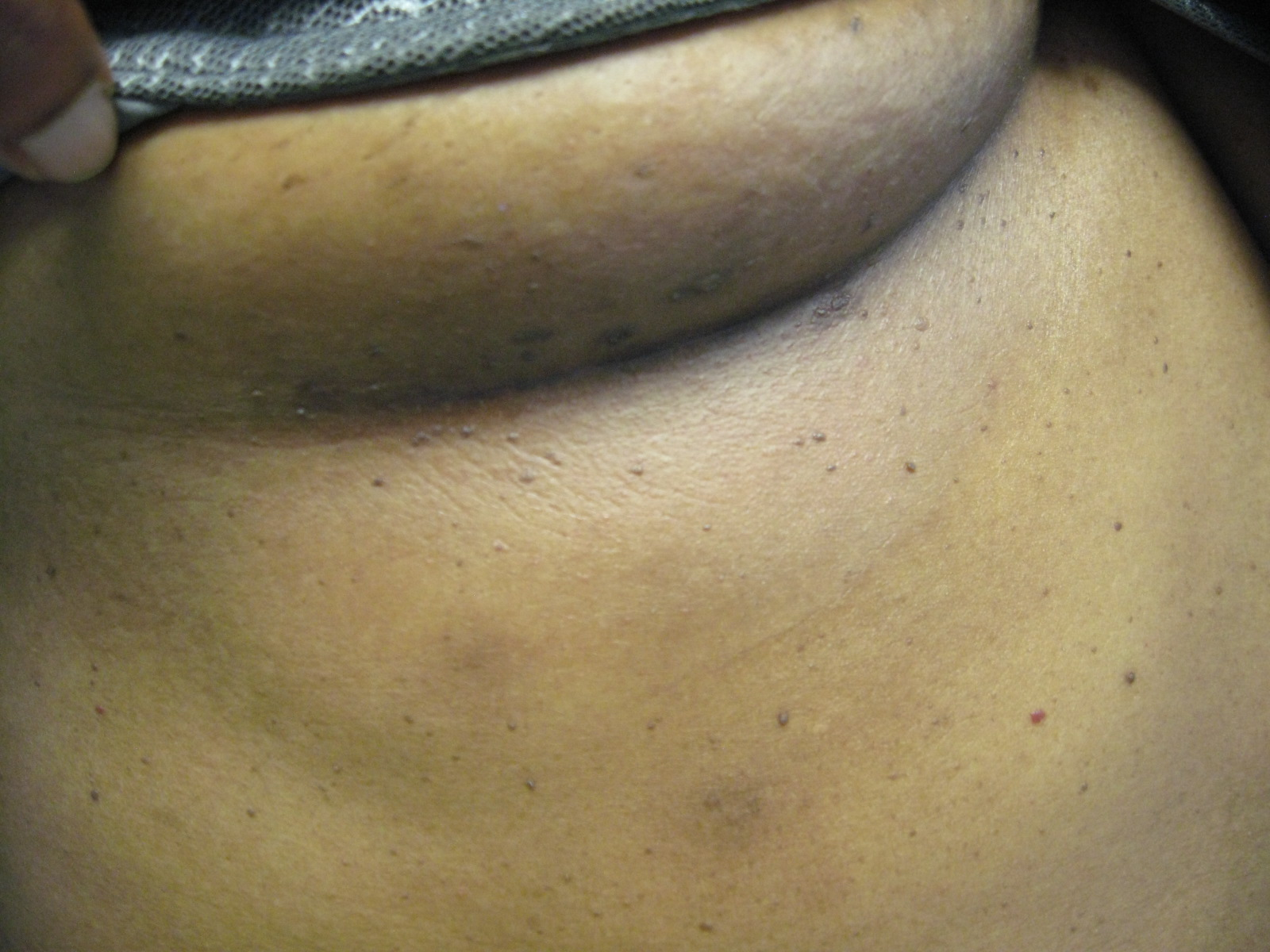 African american woman and breast reduction